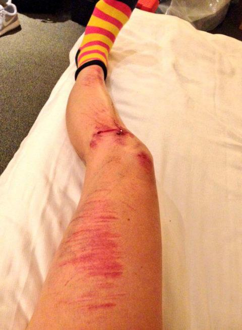 Emilia Fahlins ben är inte så vackra just nu. Men inget verkar vara brutet och snart lär hon vara tillbaka i sadeln. Foto: @emiliafahlin på Twitter